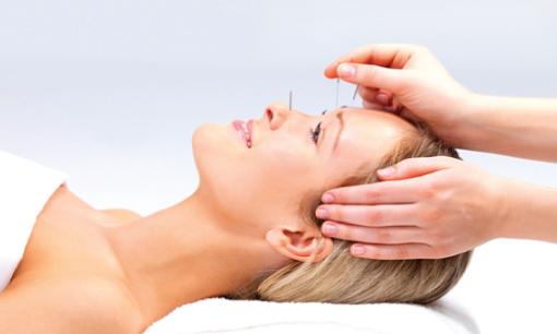 Cosmetische acupunctuur: facelift